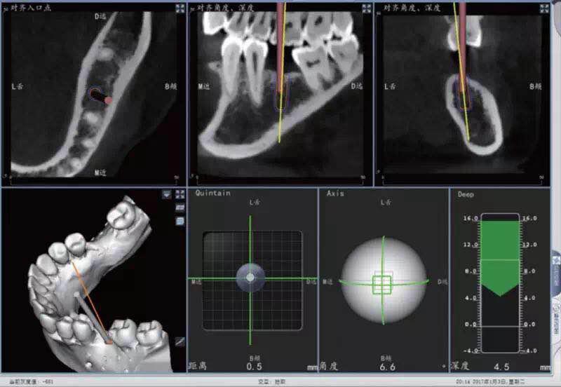 深度依赖_《中国医学论坛报今日口腔》数字化助力口腔种植手术的两条 ...